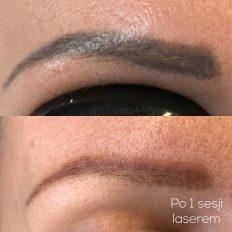 Usuwanie makijażu permanentnego centrum polaszek
